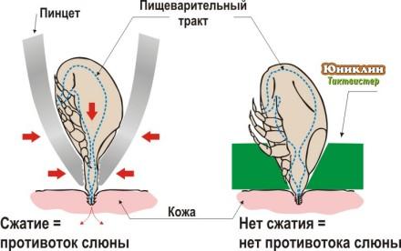 http://encephalitis.ru/uploads/posts/2009-07/1247625265_shema_tt.jpg